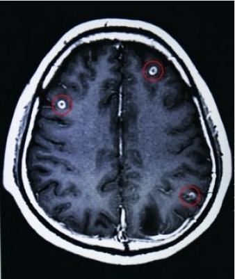ブタの生き血が原因で寄生虫.PNG