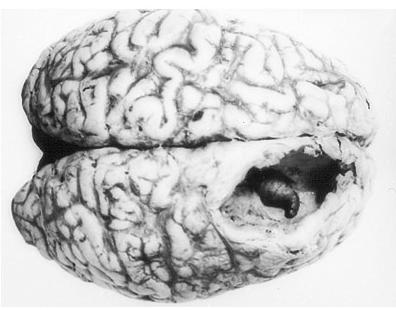寄生虫脳.PNG